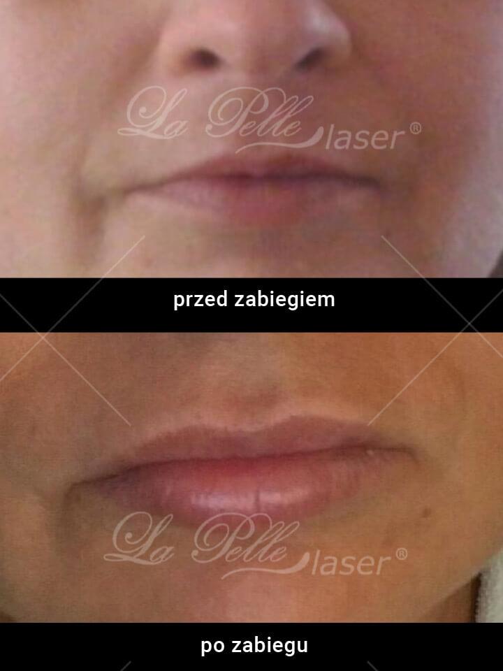 Powiększanie ust 1ml